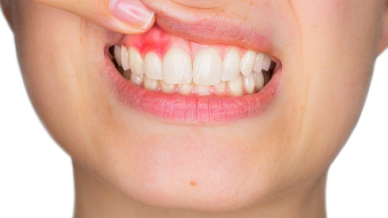 How to identify Dental Abscesses
