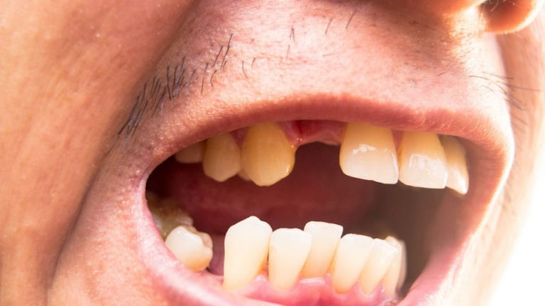What is Hypodontia