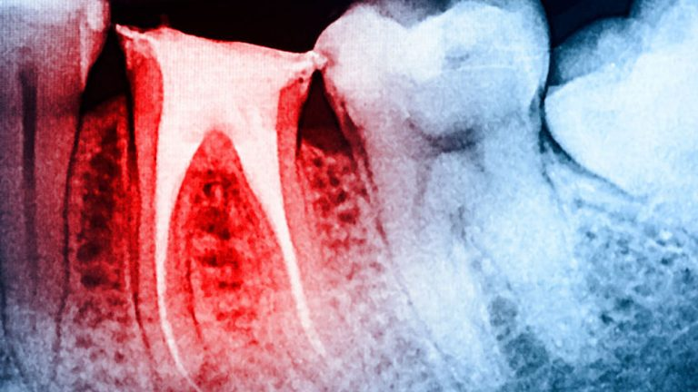 What is Root Canal Treatment 2