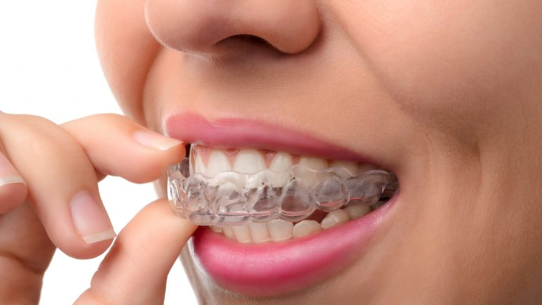 The benefits of Invisalign Clear Braces
