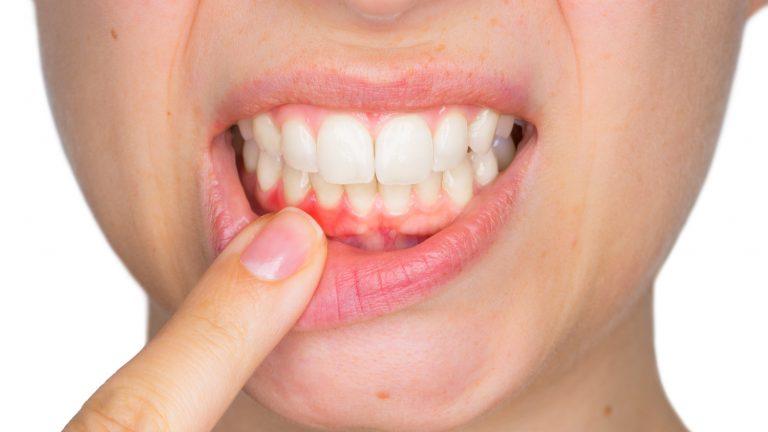 Primary prevention of Peri Implantitis 2