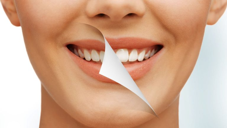 The dangers of teeth whitening kits
