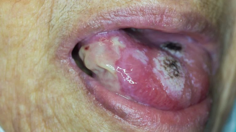 Causes of mouth cancer