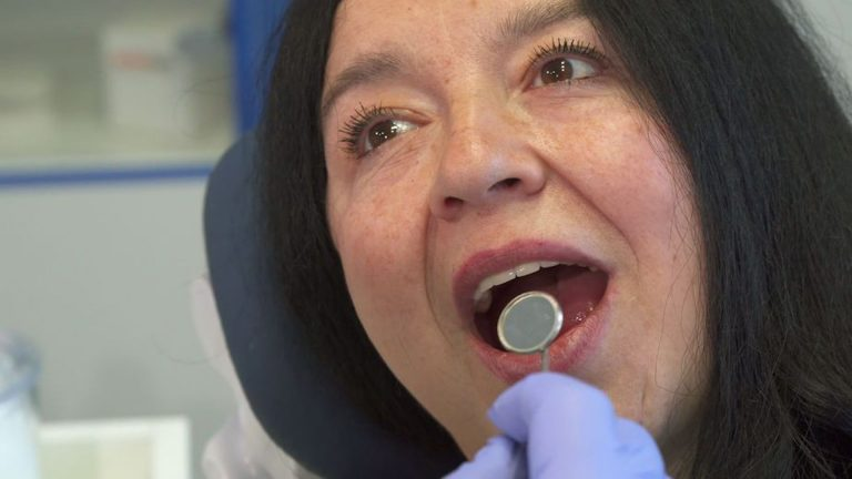 Diagnosis of Mouth Cancer 1