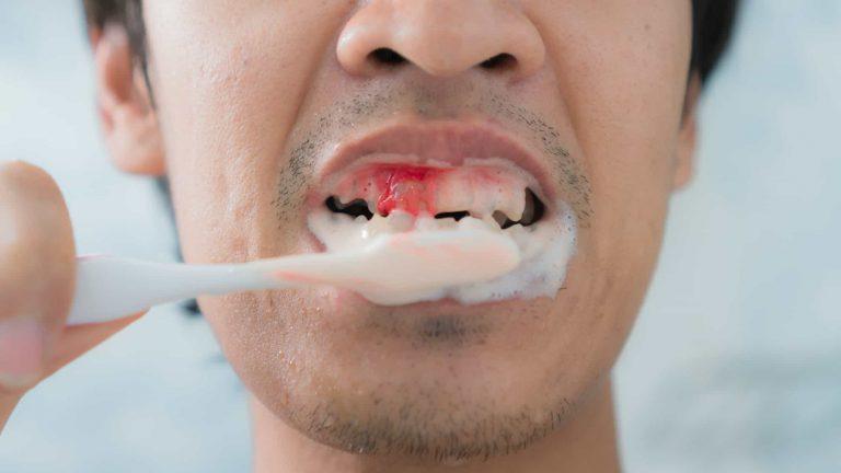 Bleeding Gums Mark Tangri Dental Excellence 1