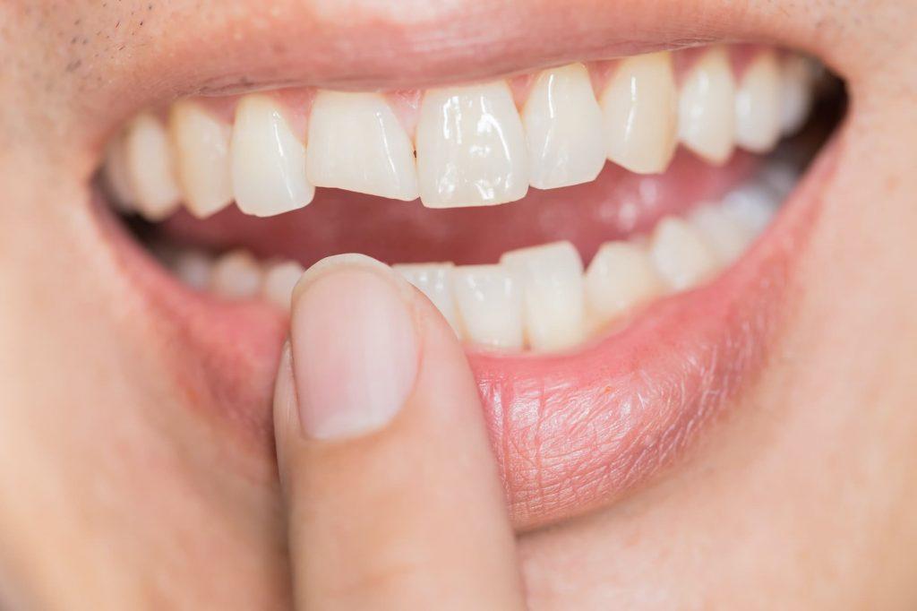 Dental Trauma Mark Tangri Dental Excellence 1