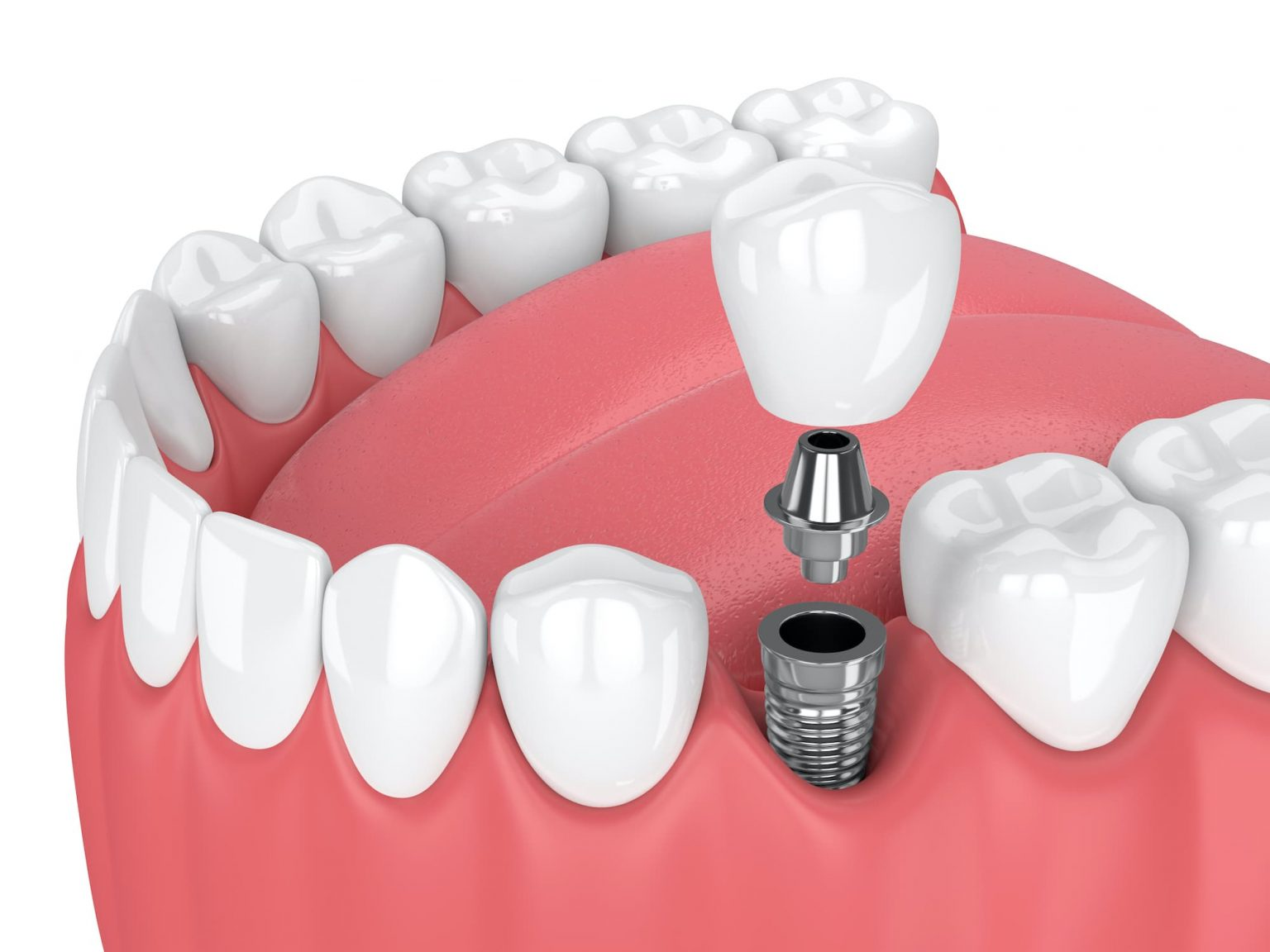 Dental Implants Mark Tangri Dental Excellence