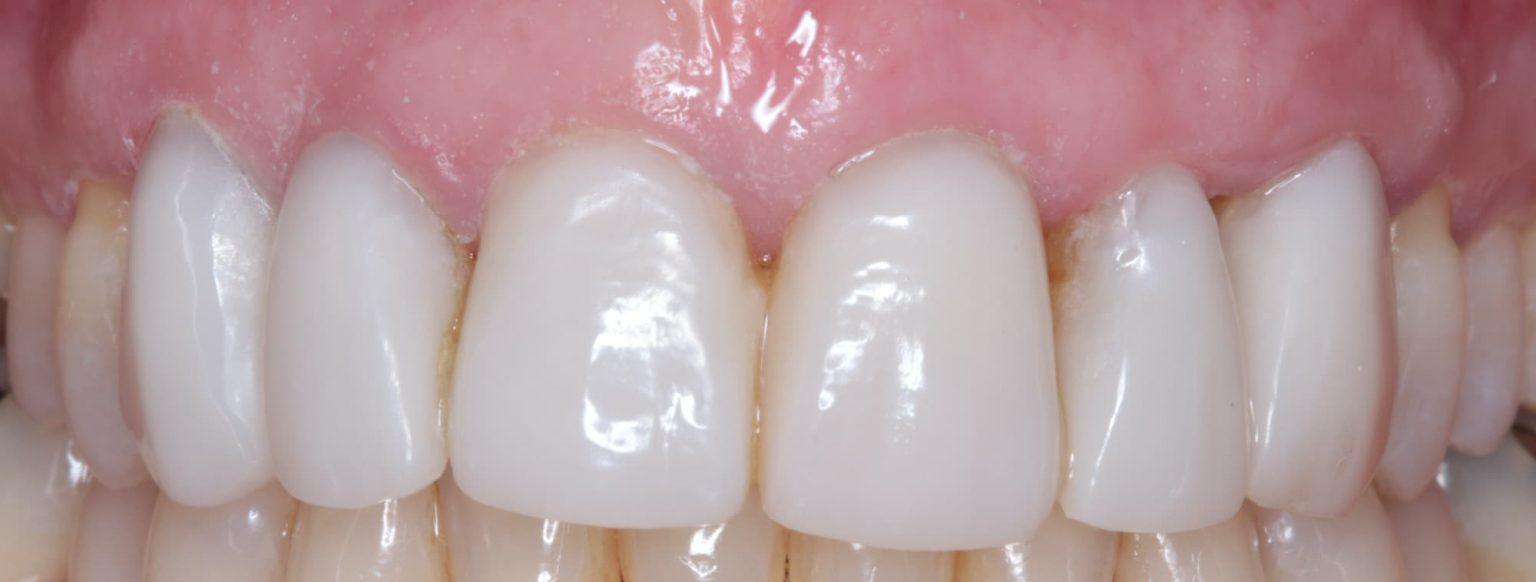 After Composit Bonding Mark Tangri Dental Excellence