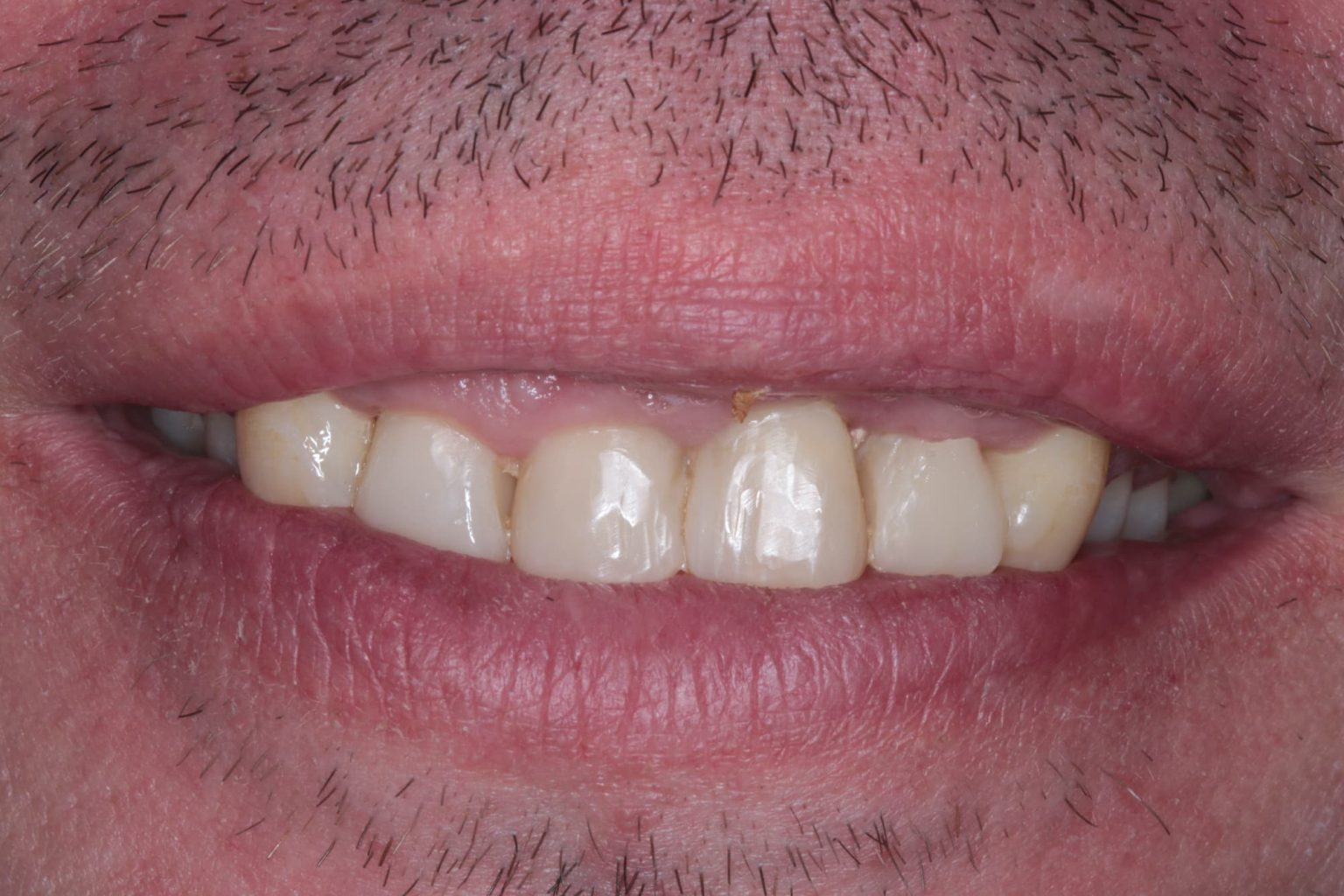 Cosmetic Dentistry Composit Bonding After Mark Tangri Dental Excellence
