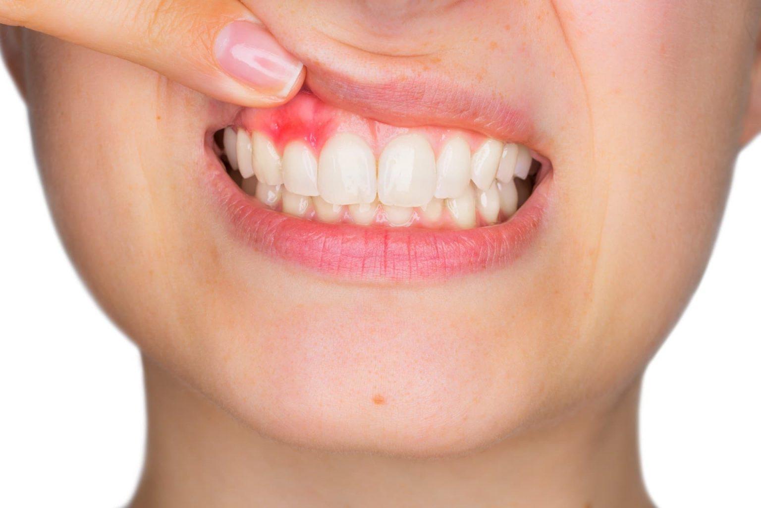 Gum Disease Treatment Mark Tangri Dental Excellence
