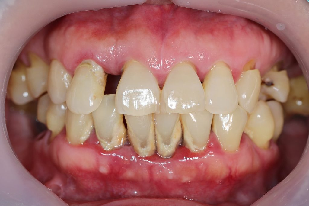 What is chronic periodontal disease Mark Tangri Dental Excellence
