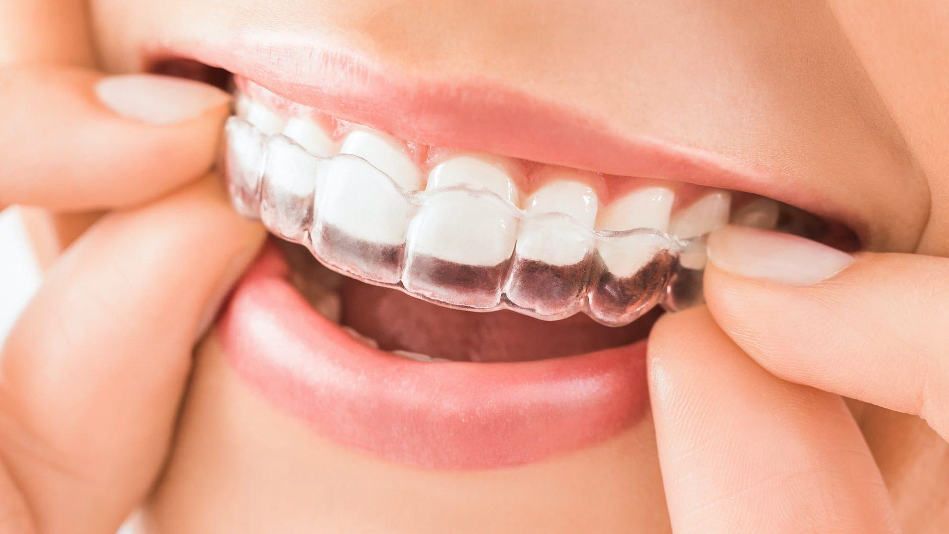 Invisalign Clear Braces Treatment Birmingham Mark Tangri Dental Excellencejpg